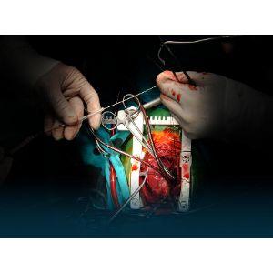 Cardio/Thoracic